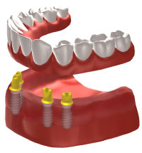 Dental implants Whitstable - Full arch